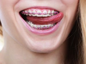 what do braces feel like center city orthodontists