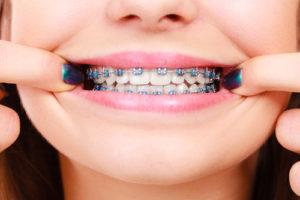 get braces now center city orthodontist